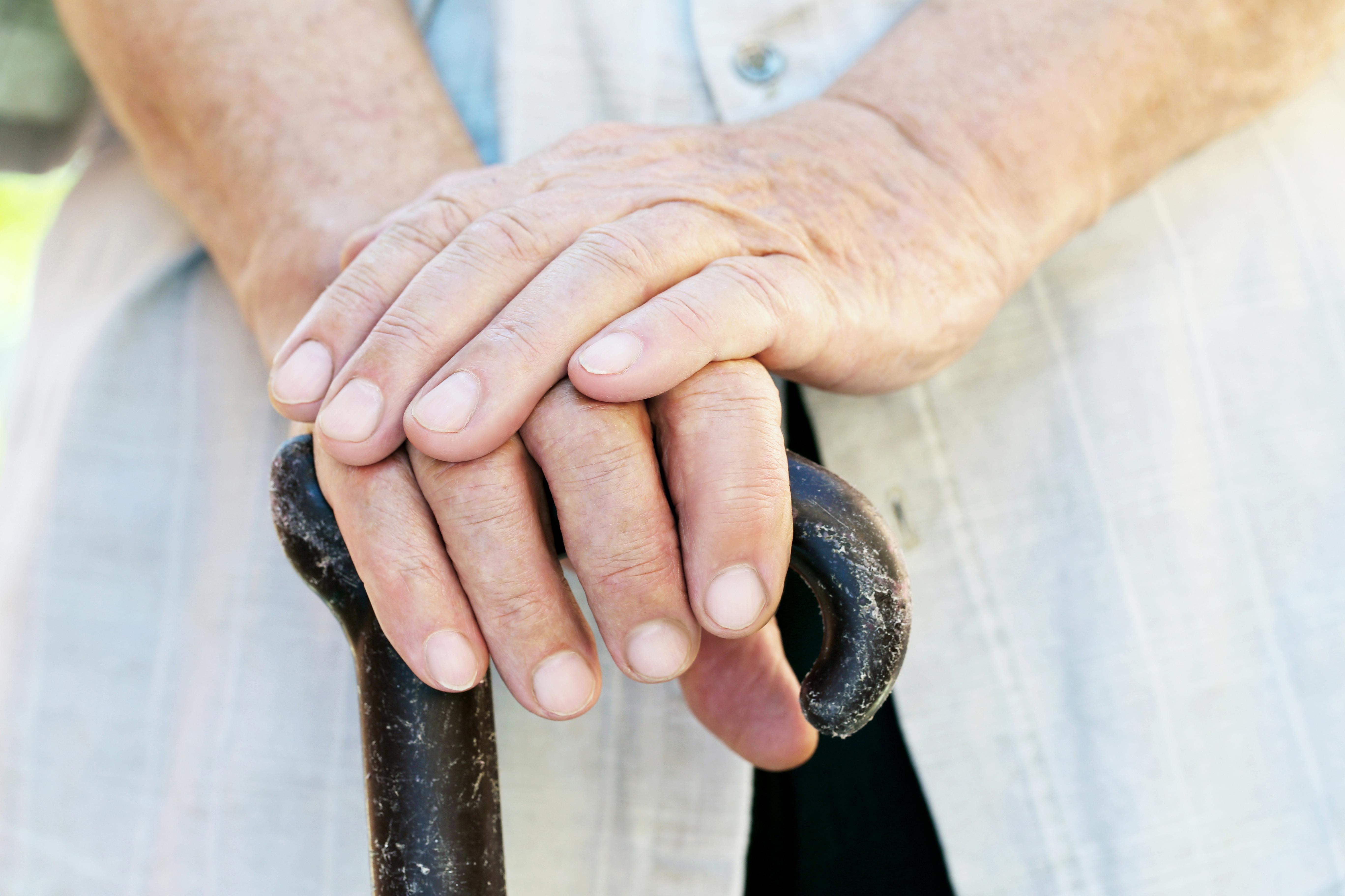 Zespół cieśni nadgarstka – boląca dolegliwość